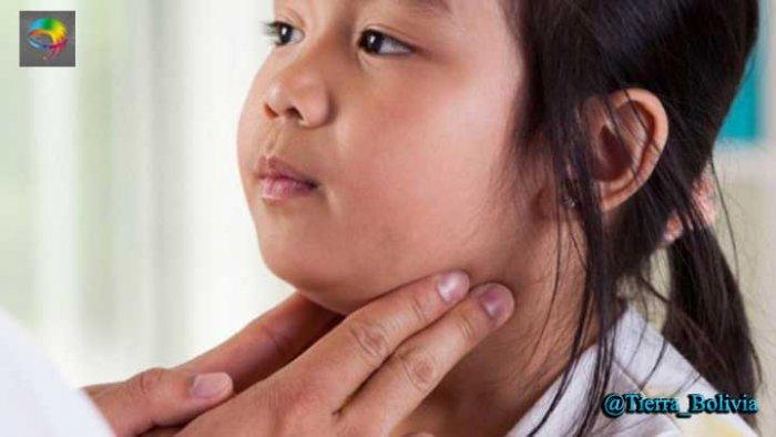 Epidemia: SEDES La Paz registra 3.033 casos de parotiditis en lo que va del año